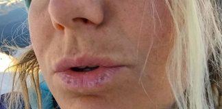 How to treat sunburned lips