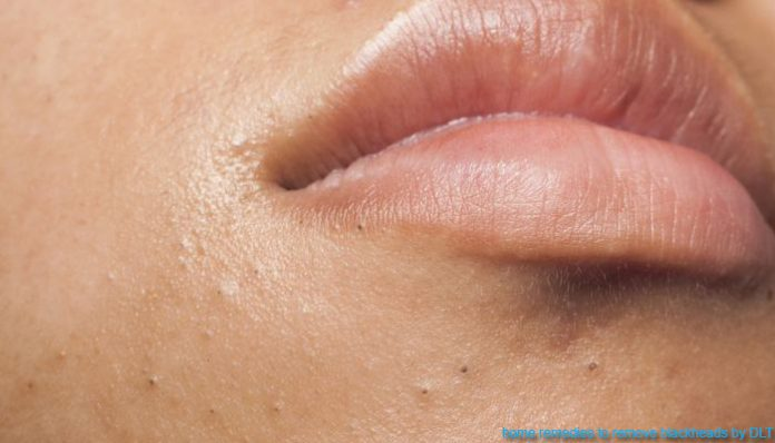 best home remedies to remove blackheads