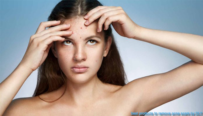 best products to remove acne scars