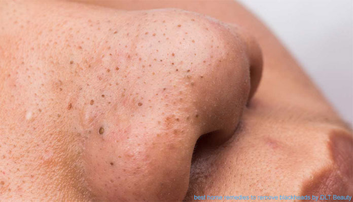 10 Best Home Remedies To Remove Blackheads Dlt Beauty